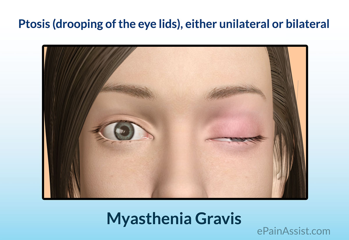 The Signs and Symptoms of Myasthenia Gravis