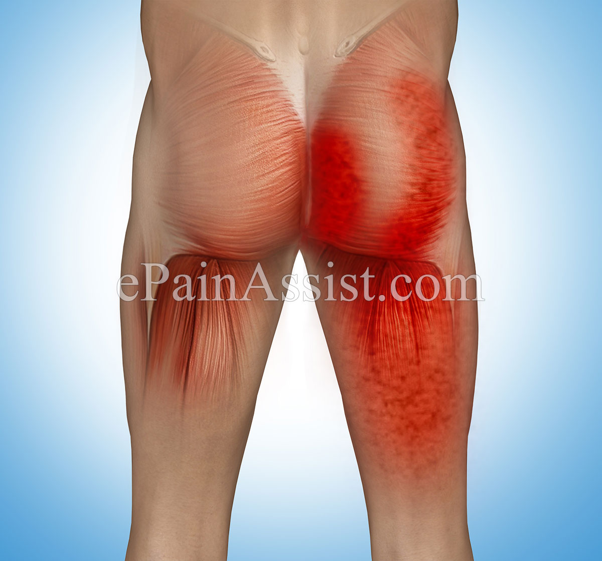 Myofascial Pain In Buttock Muscles Causes Symptoms