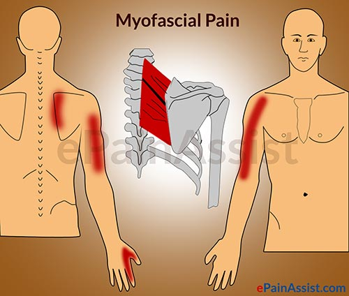 Myo facial pain syndrome