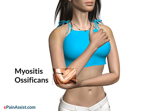 Symptoms of Myositis Ossificans or Heterotopic Ossification