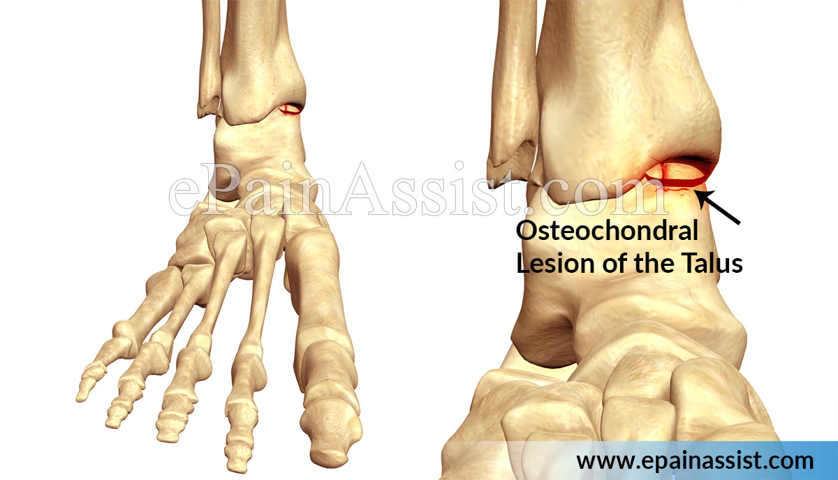 Osteochondral Lesion of the Talus (OLT)