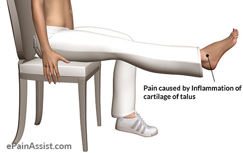 Pain cause by Inflammation of Cartilage of Talus