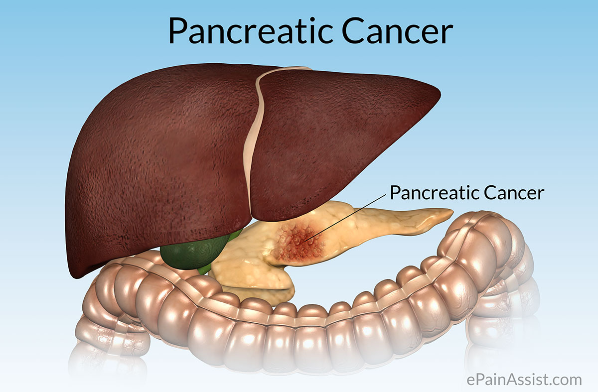 Pancreatic Cancerstagestypescausesrisk Factorssignssymptoms