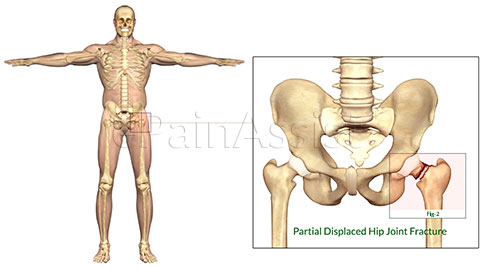 Hip Joint Fracture|Classification|Types|Causes|Symptoms|Signs|Treatment