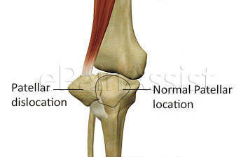 Patellar position  in Dislocated  knee and Normal knee