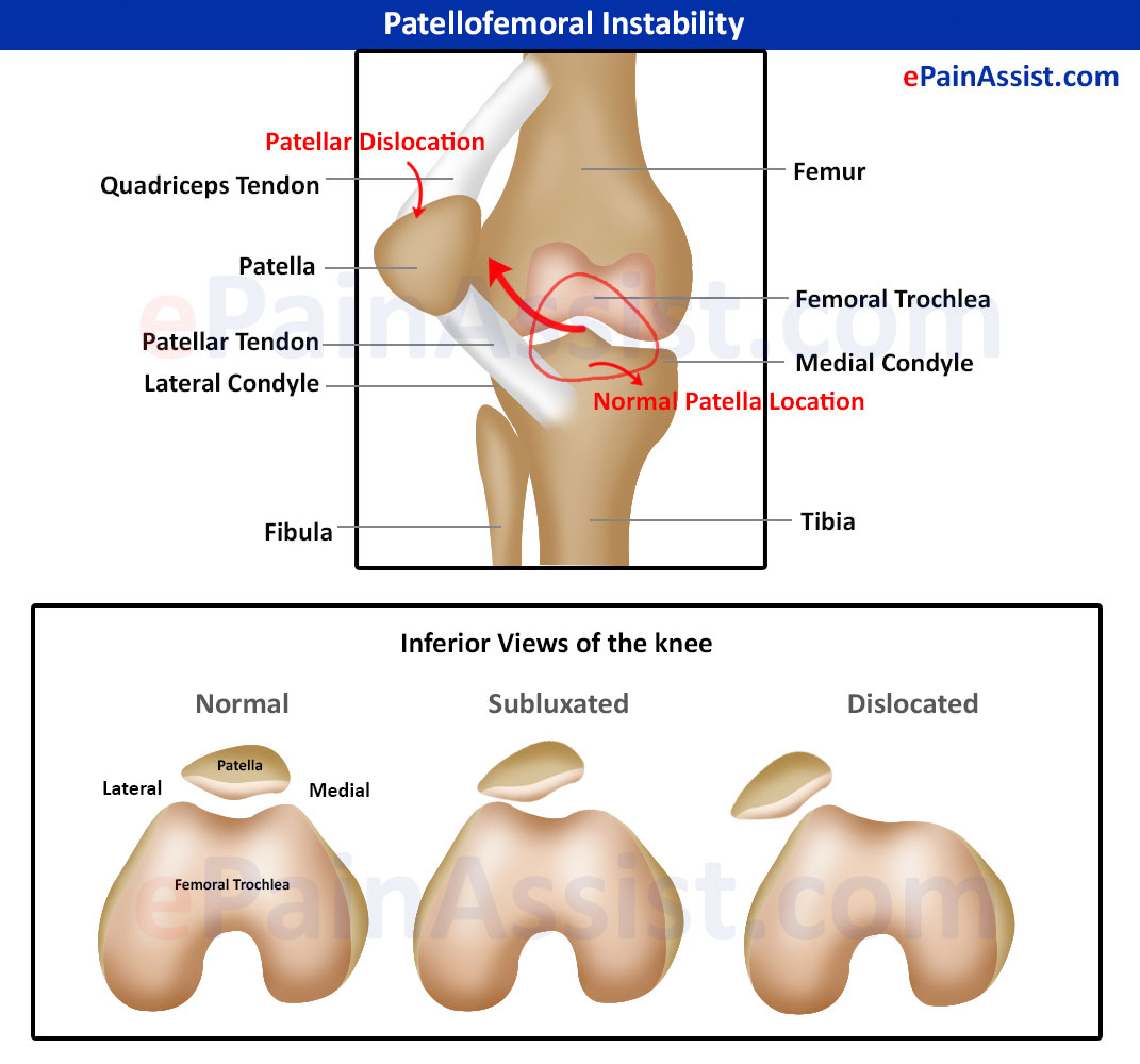 Patellofemoral Instability|Primary,Secondary,Causes,Symptoms,Treatment