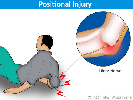 Ulnar Nerve Compression causes by Positional Injury