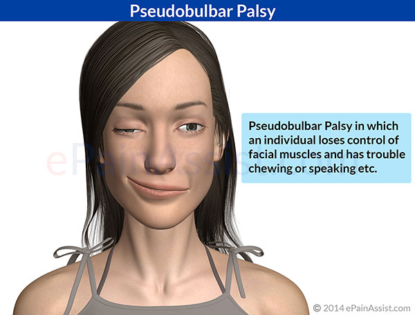 Accept. Facial paresis caused by a dentist for that