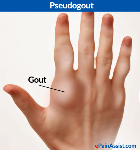 food for prevention of gout uric acid food to eat chart foods that avoid uric acid