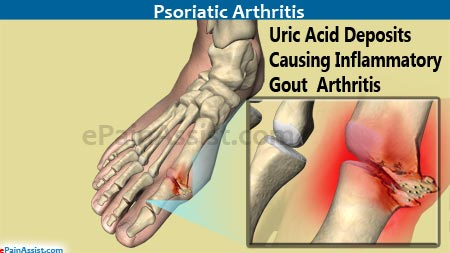 beef good for gout lower uric acid level without medication