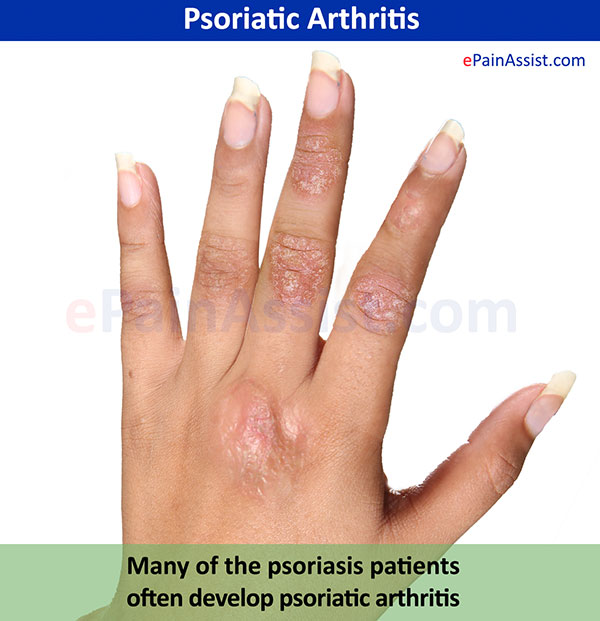 Around one in five people with the skin condition psoriasis will also develop the painful joint condition psoriatic arthritis 2