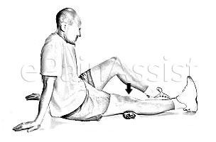 Quad Set Exercise for Patellofemoral Pain Syndrome
