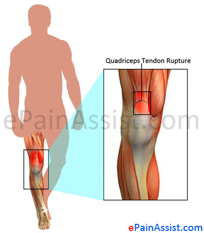 What Can Cause Quadriceps Tendon Rupture and What are its ...