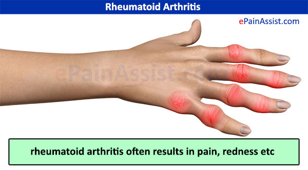 Image gallery inflammatory arthritis for Does fish oil help with joint pain
