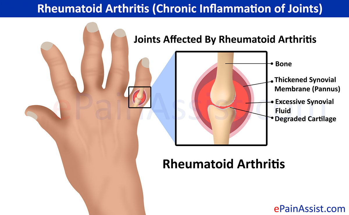Rheumatoid Arthritis Chronic Inflammation Of Joints