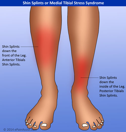 Risk Factors For Developing Medial Tibial Stress Syndrome or Shin Splints Include