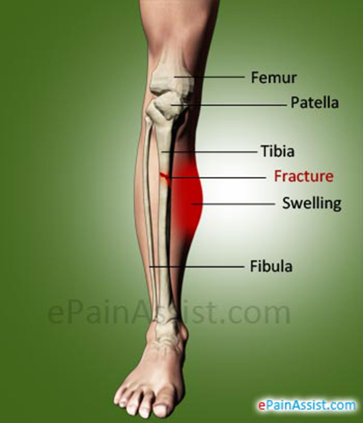 Shin Fracture Or Fracture Of Tibia Causes Symptoms Types Treatment