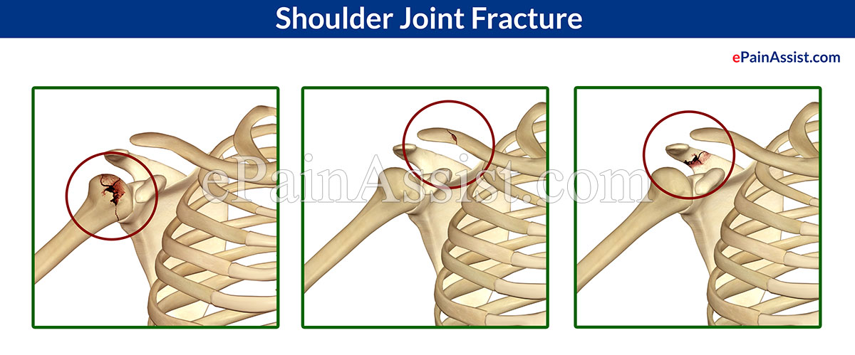 Shoulder Joint Fracture