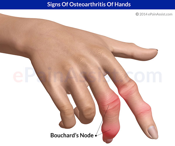 Osteoarthritis Of Hands|Risk Factors|Symptoms|Signs ...