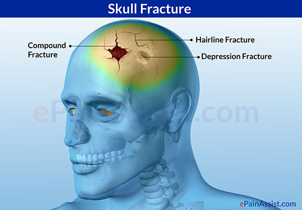 Linear Skull Fracture : Skull fracture types symptoms investigations treatment
