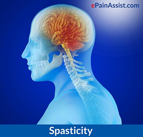 What is Spasticity? Know Its Causes, Symptoms, Treatment