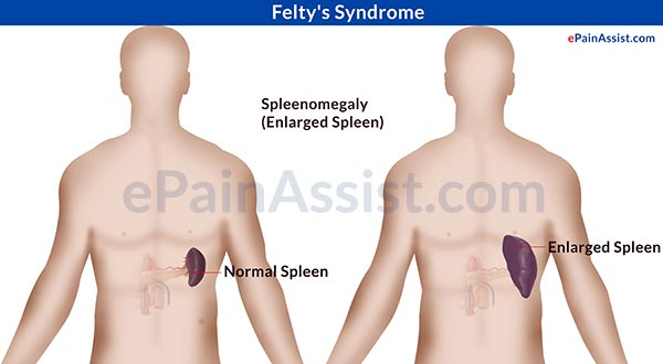 Felty's Syndrome