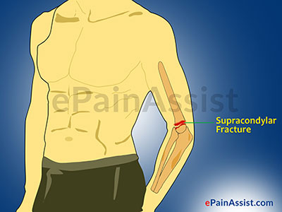 Supracondylar Fracture: Types, Causes, Symptoms, Treatment