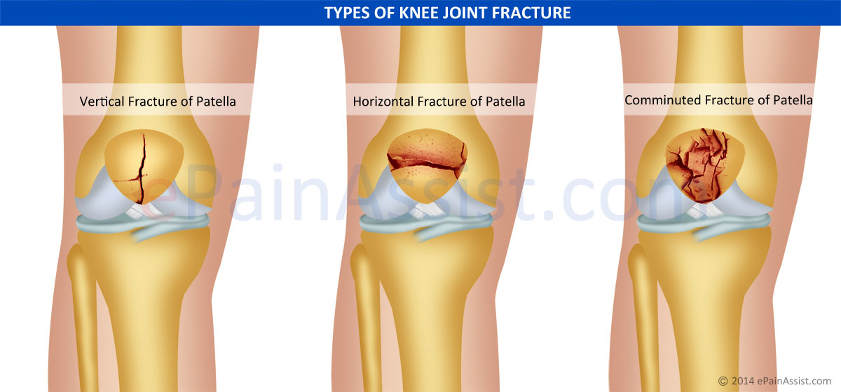 Types Of Knee Joint Fracture