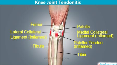 Tendonitis Of Knee Joint