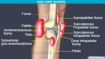 Bursitis of Knee Joint