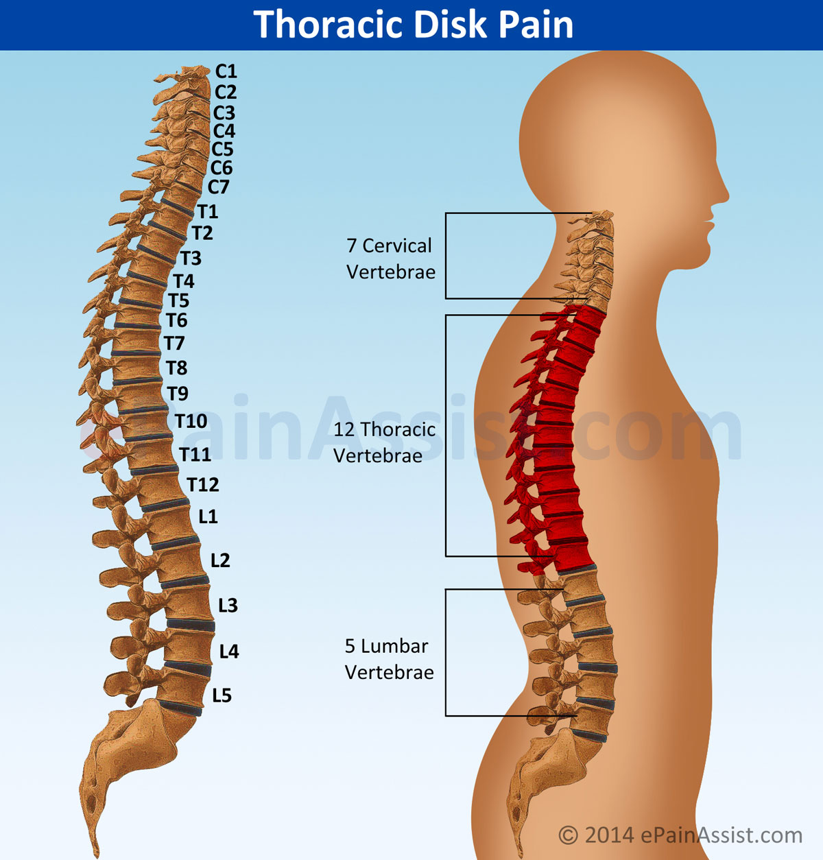 Thoracic Disk Paintypessymptomstreatment Epidural Steroid
