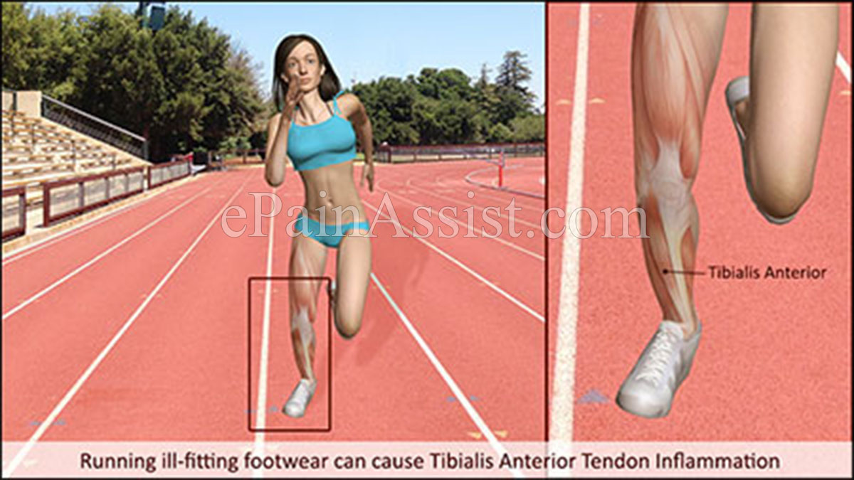 Running ill-fitting footwear can cause Tibialis Anterior Tendon Inflammation.