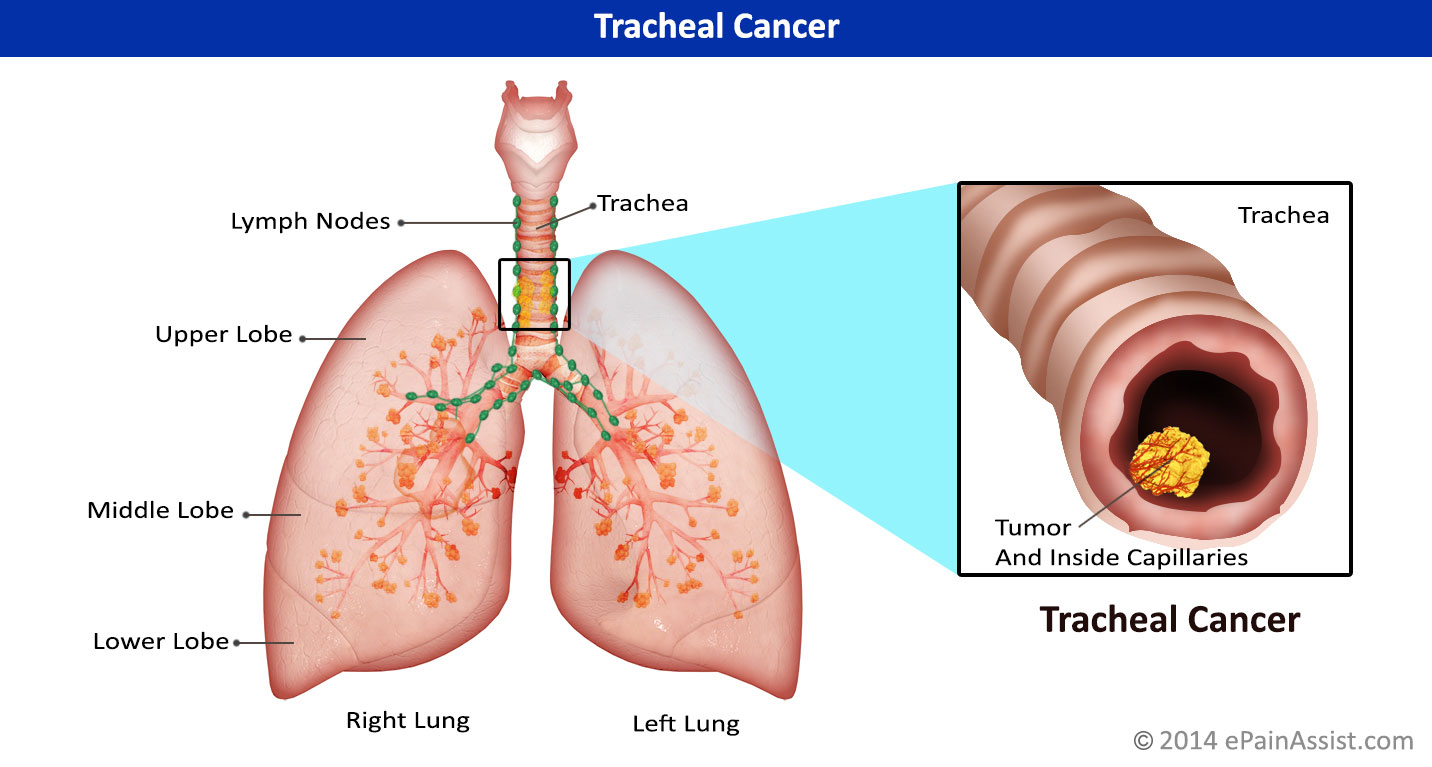 Tracheal Cancercausessignssymptomsstagesgradingtreatment