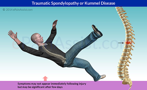 Traumatic Spondylopathy or Kummel Disease