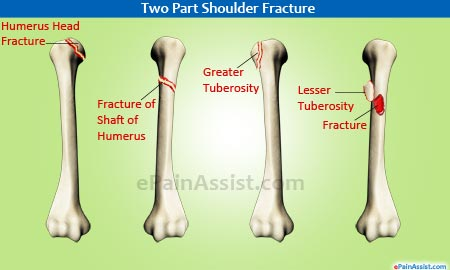 Shoulder Joint Fracture|Types|Causes|Symptoms|Treatment-Conservative ...