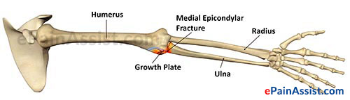 Causes of Ulnar Growth Plate Fracture
