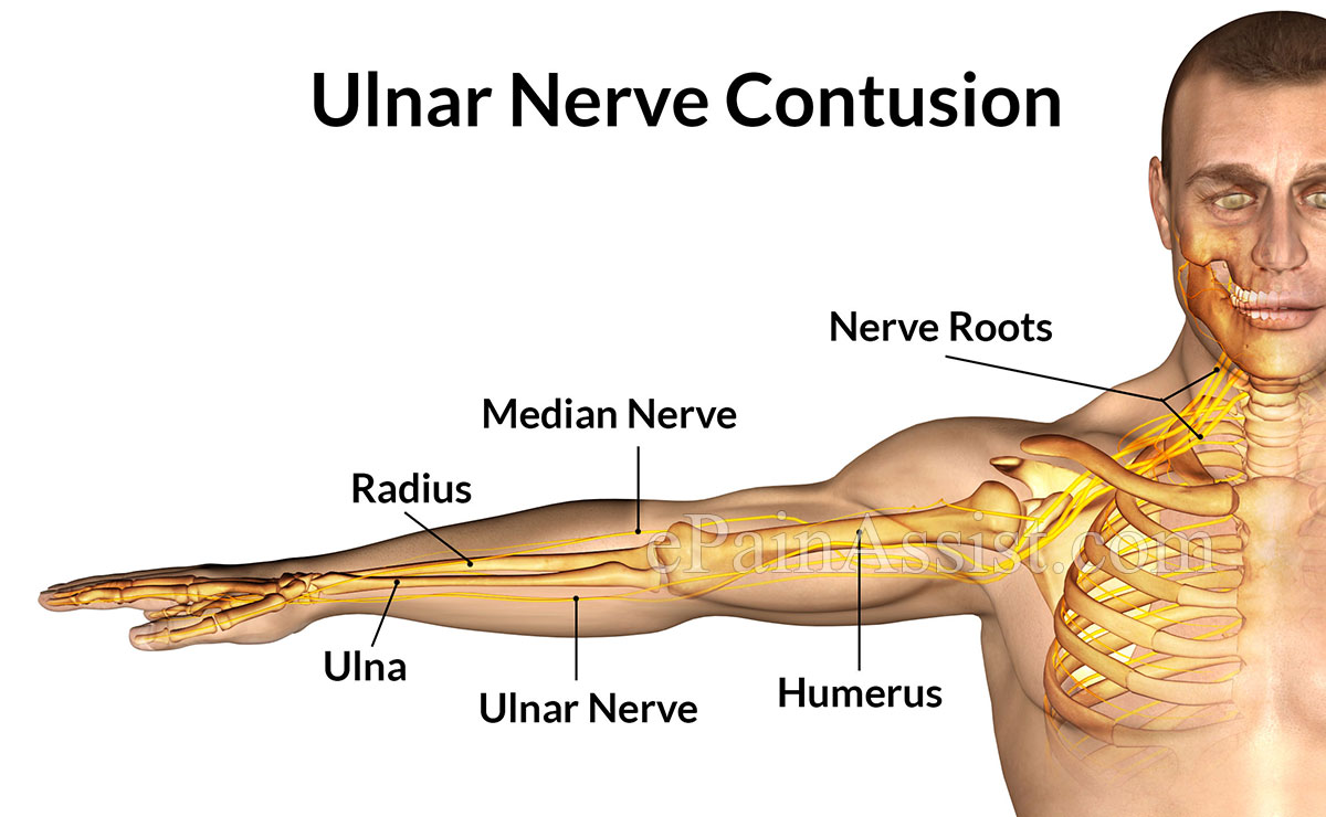 Ulnar Nerve Contusionsymptomscausestreatment Cold Therapy Cast