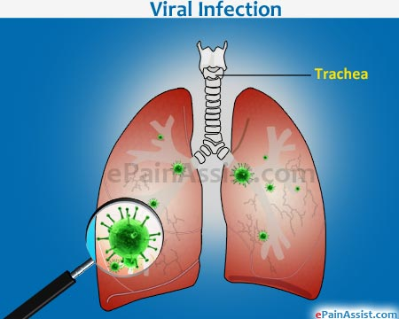 Viral infections