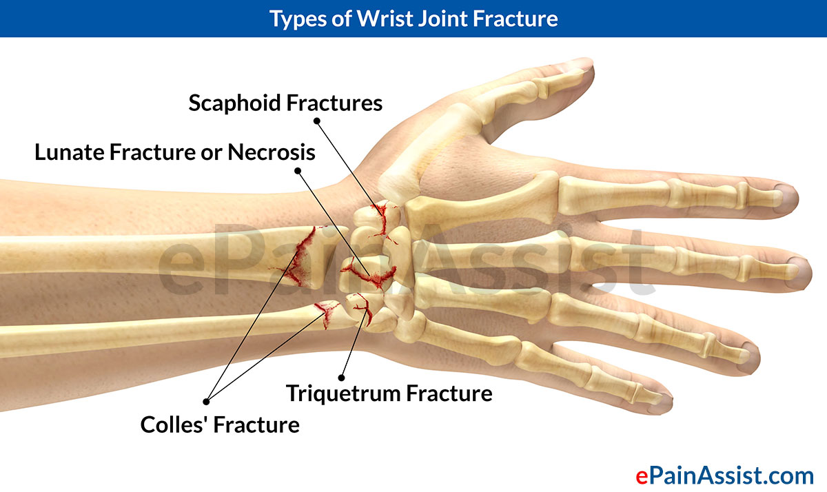 Wrist Joint Fracturetypescausessymptomstreatment Medications Pt