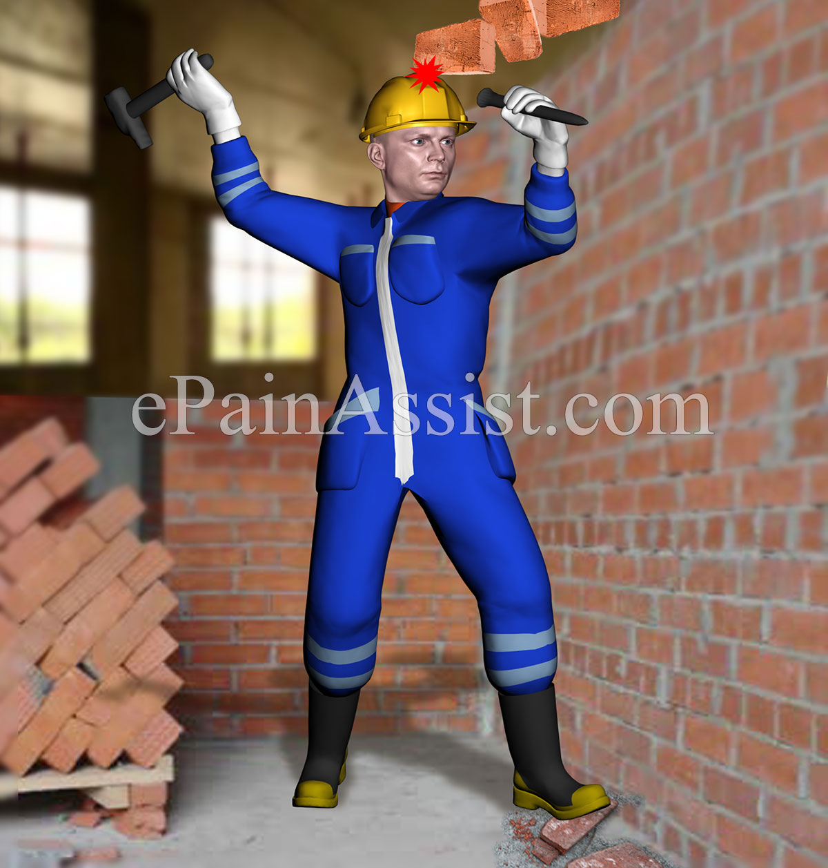 Workplace accidents or occupational accidents