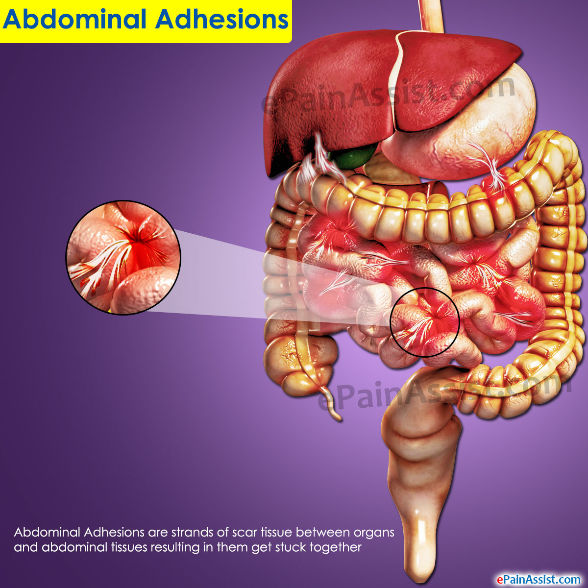 Treatment of intestinal adhesions, their symptoms, diagnosis and prevention