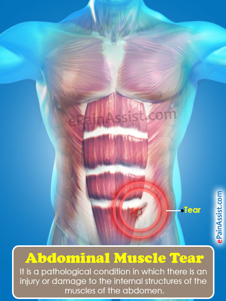 Abdominal Muscle Tearcausessymptomstreatmentrecoveryexercise