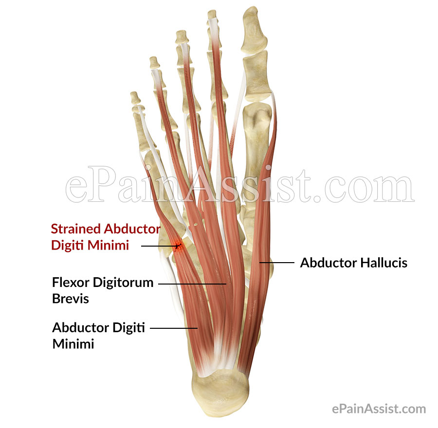 Strained Abductor Digiti Minimi Muscle of the Foot