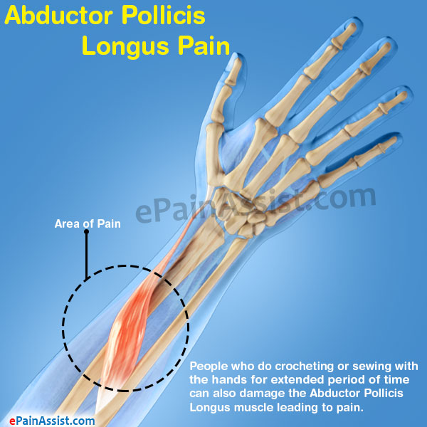 Abductor Pollicis Longus Pain