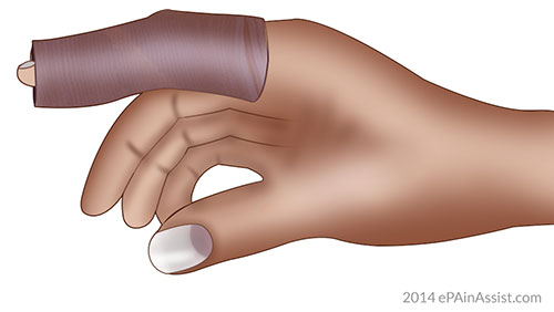 Ace Bandage for Dislocation of Fingers