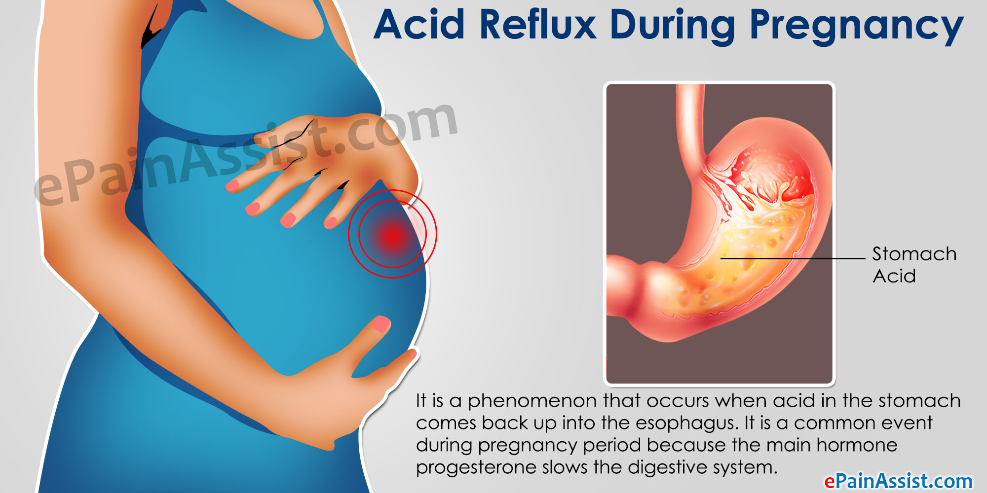 Acid Reflux During Pregnancy