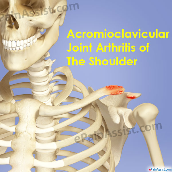 Acromioclavicular Joint Arthritis Of The Shoulder