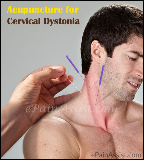 Acupuncture for Cervical Dystonia or Spasmodic Torticollis
