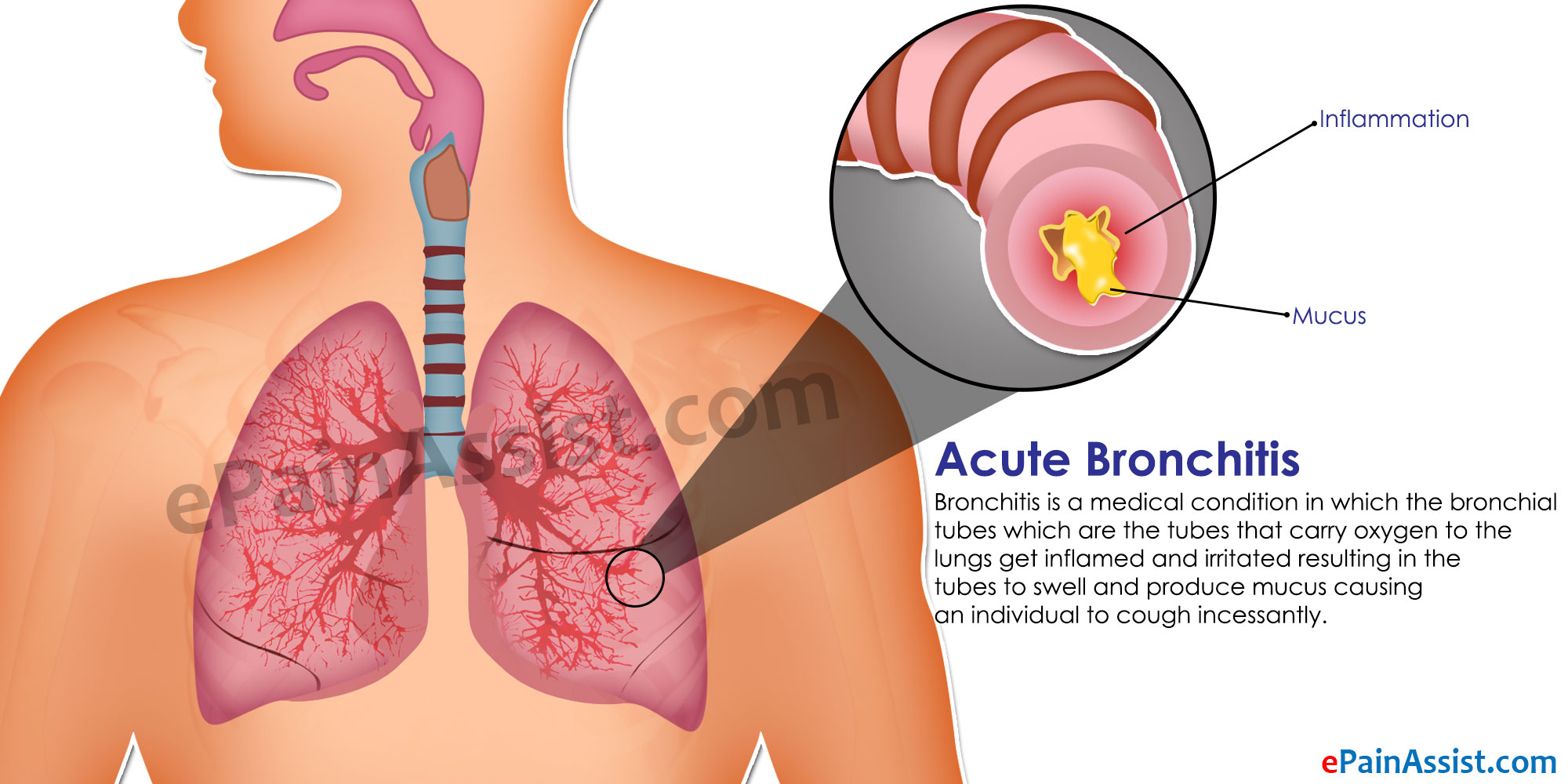 Acute Bronchitis Treatment Home Remedies Prevention Symptoms
