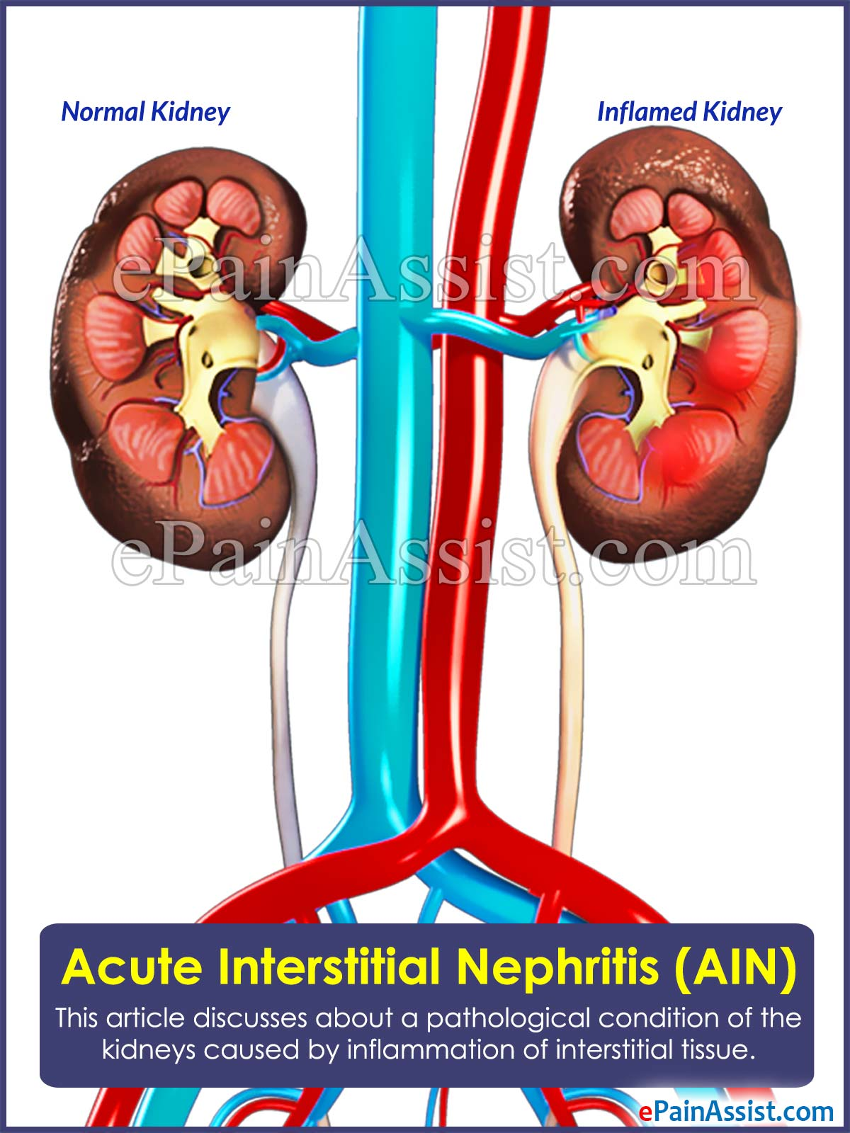 acute interstitial nephritis (ain)|causes|risk factors|symptoms, Skeleton